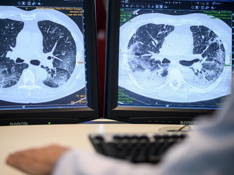 Zu welchem Zeitpunkt sollten Ärzte bei Covid-19-Patienten mit der künstlichen Beatmung beginnen? Noch ist dafür keine Standardvorgehensweise festgelegt. Foto: Sebastian Gollnow/dpa