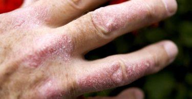 Eine Schuppenflechte zeigt sich oftmals durch rötliche, silbrig glänzende Hauterhebungen, die stark schuppen - zum Beispiel an den Händen. Foto: Arno Burgi/dpa-Zentralbild/dpa-tmn