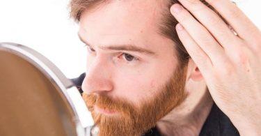 Größer werdende Geheimratsecken können bei Männern auf einen anlagebedingten Haarausfall hindeuten. Foto: Christin Klose/dpa-tmn