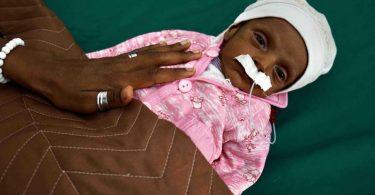 Ein 38 Tage altes unterernährtes Baby in einem Krankenhaus im Jemen. 60 Prozent der Bevölkerung in dem Land können sich keine Grundnahrungsmittel mehr leisten. Foto: Giles Clarke/UNOCHA/dpa