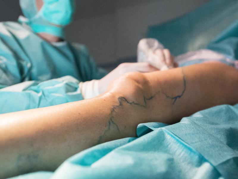 Verkleben oder Strippen: Für die Behandlung von Krampfadern gibt es unterschiedliche Methoden. Foto: Andrea Warnecke/dpa-tmn