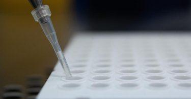 Ein PCR-Test in einem Labor in Stuttgart. Virologin Brinkmann fordert einen vermehrten Einsatz sogenannter Lollitests oder Gurgeltests. Diese können per PCR ausgewertet werden. Foto: Sebastian Gollnow/dpa