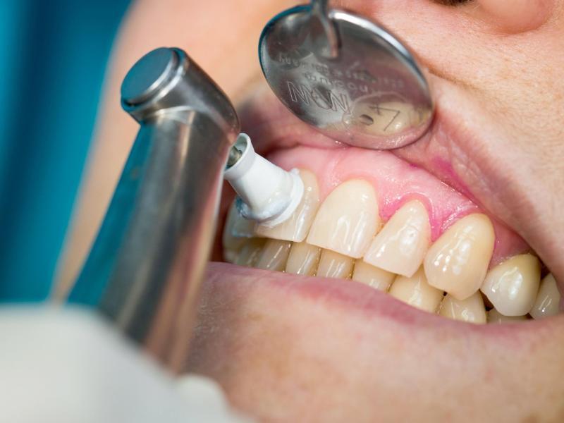 Regelmäßige professionelle Zahnreinigungen beugen Zahnfleischproblemen vor. Foto: Frank Rumpenhorst/dpa-tmn